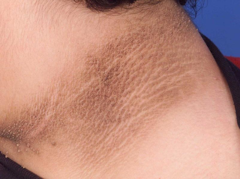 Xuất hiện các vết thâm trên da
